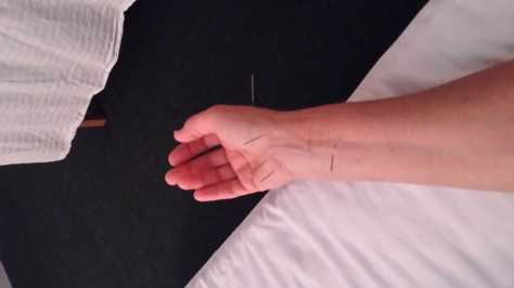 Acupuncture Treatment